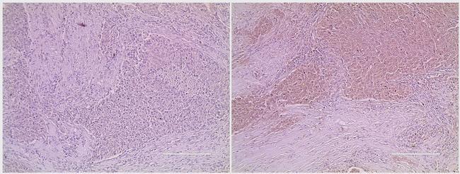 MDM2 Antibody in Immunohistochemistry (IHC)