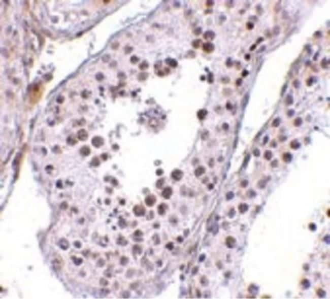 MED4 Antibody in Immunohistochemistry (IHC)