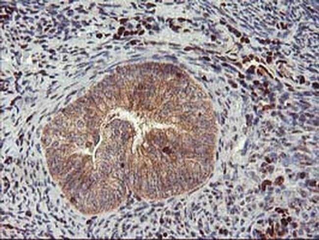 MEF2C Antibody in Immunohistochemistry (Paraffin) (IHC (P))