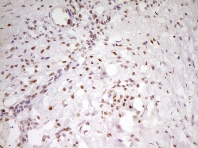 MEF2D Antibody in Immunohistochemistry (Paraffin) (IHC (P))
