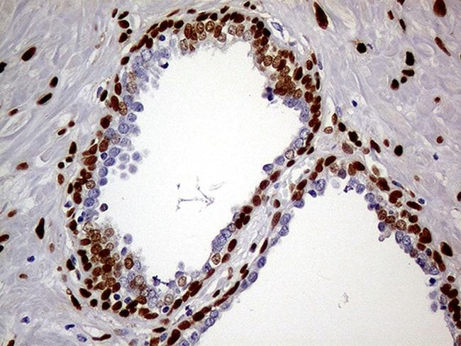 MEIS1 Antibody in Immunohistochemistry (Paraffin) (IHC (P))