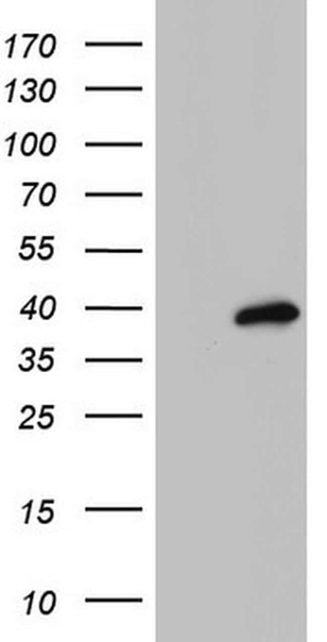 MEOX1 Antibody in Western Blot (WB)