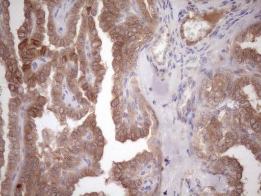 MET Antibody in Immunohistochemistry (Paraffin) (IHC (P))