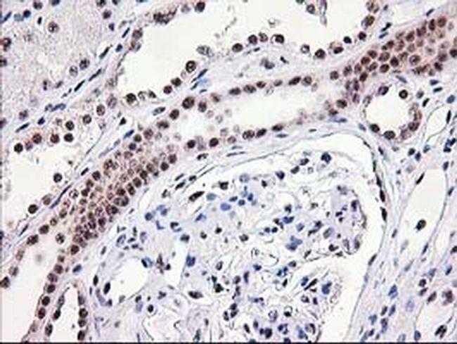 MGLL Antibody in Immunohistochemistry (Paraffin) (IHC (P))