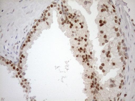 MGMT Antibody in Immunohistochemistry (Paraffin) (IHC (P))