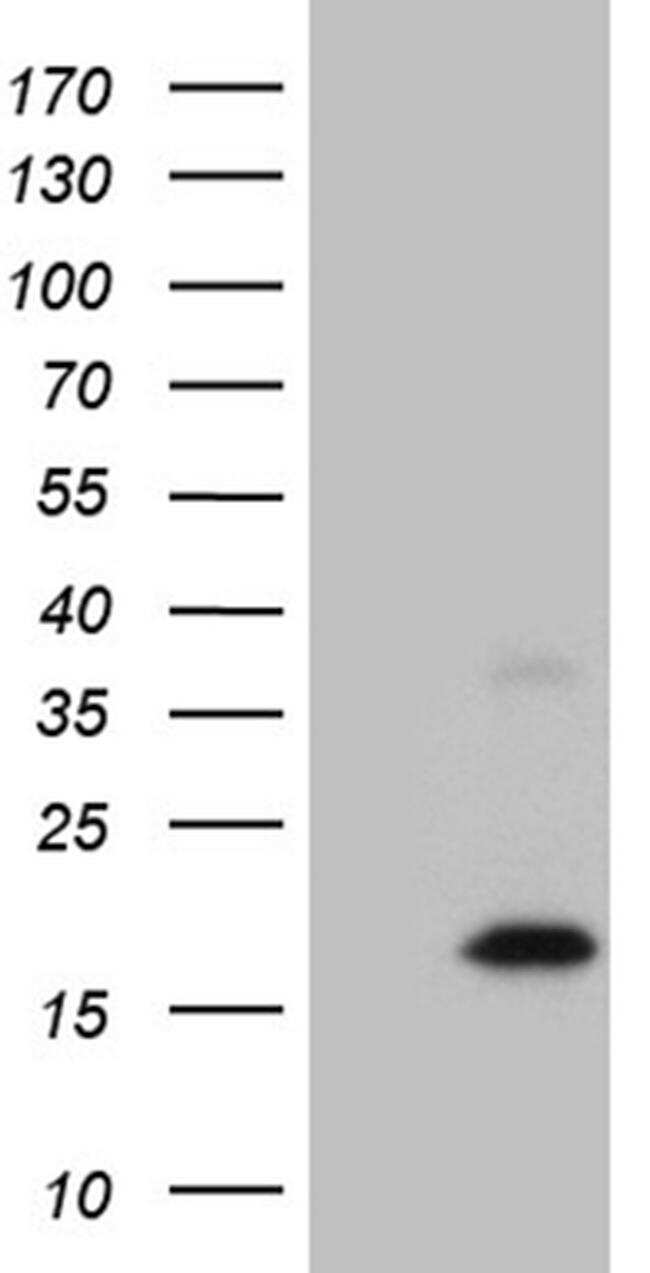 MGP Antibody in Western Blot (WB)