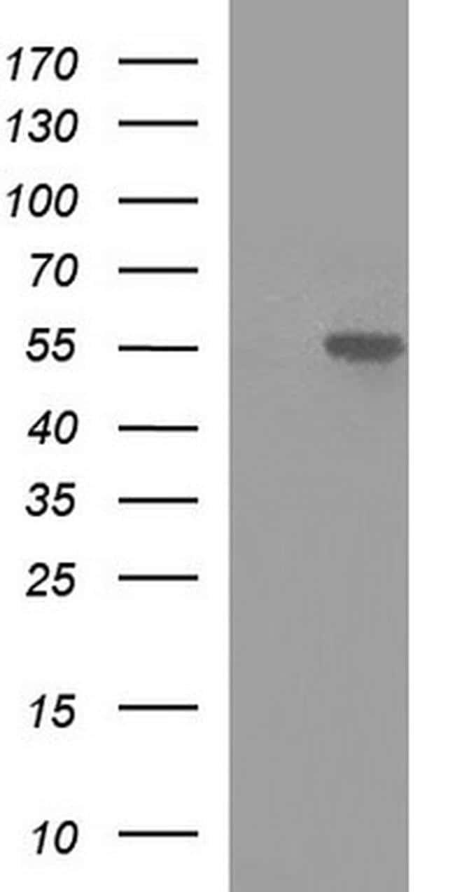MINPP1 Antibody in Western Blot (WB)