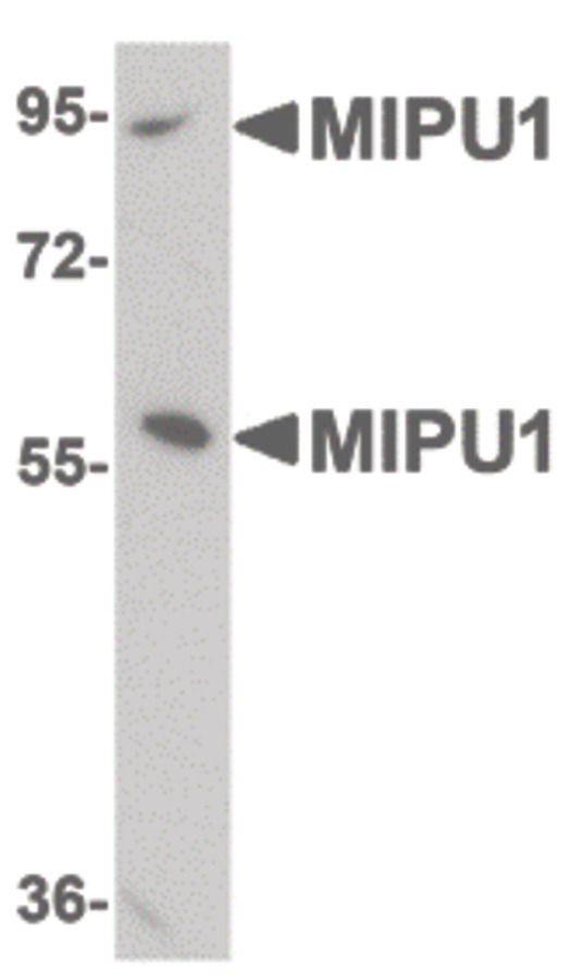ZNF667 Antibody in Western Blot (WB)