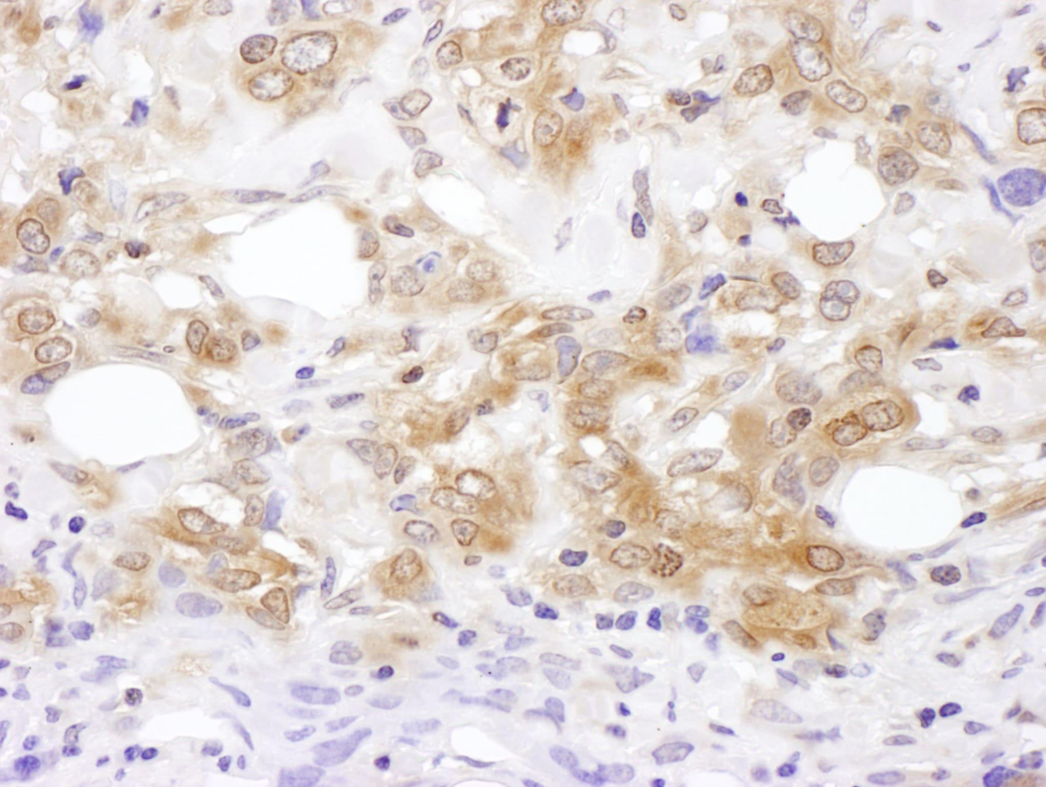 MKK7 Antibody in Immunohistochemistry (IHC)