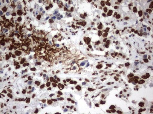 MLF1 Antibody in Immunohistochemistry (Paraffin) (IHC (P))