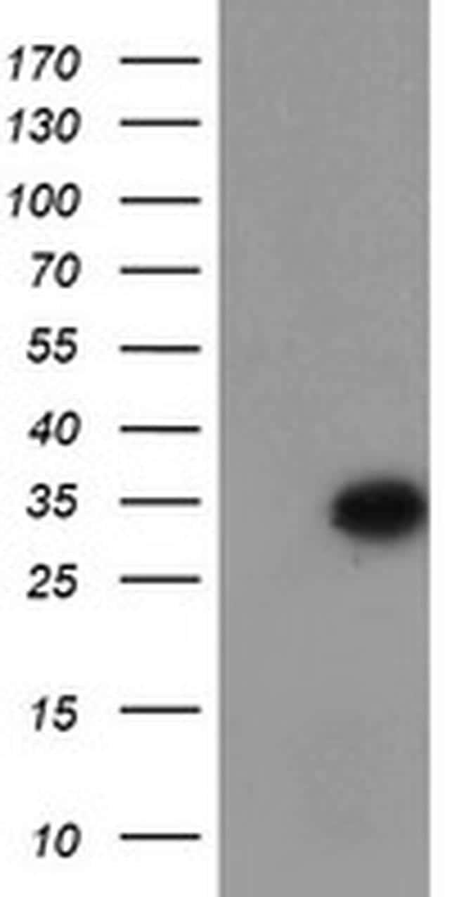 MLF1 Antibody in Western Blot (WB)