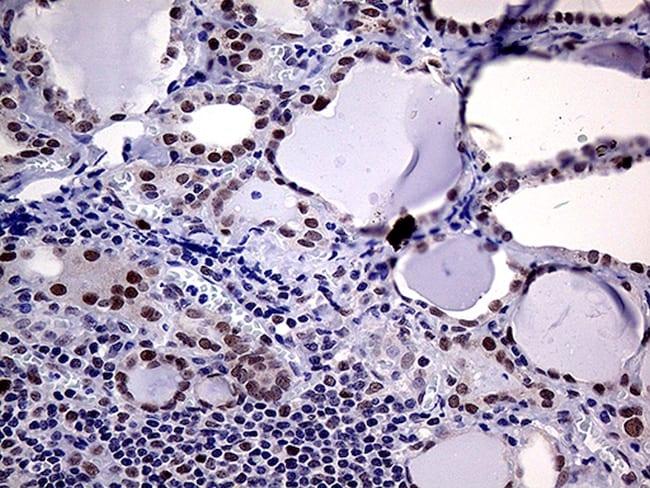 MLH1 Antibody in Immunohistochemistry (Paraffin) (IHC (P))