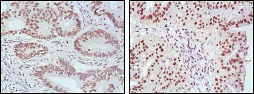 MLH1 Antibody in Immunohistochemistry (IHC)