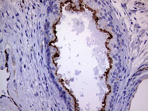 MLPH Antibody in Immunohistochemistry (Paraffin) (IHC (P))