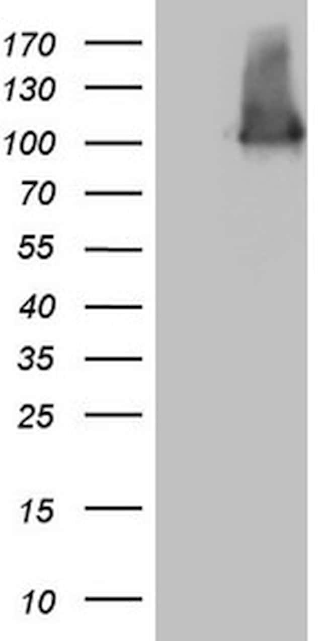 MLPH Antibody in Western Blot (WB)