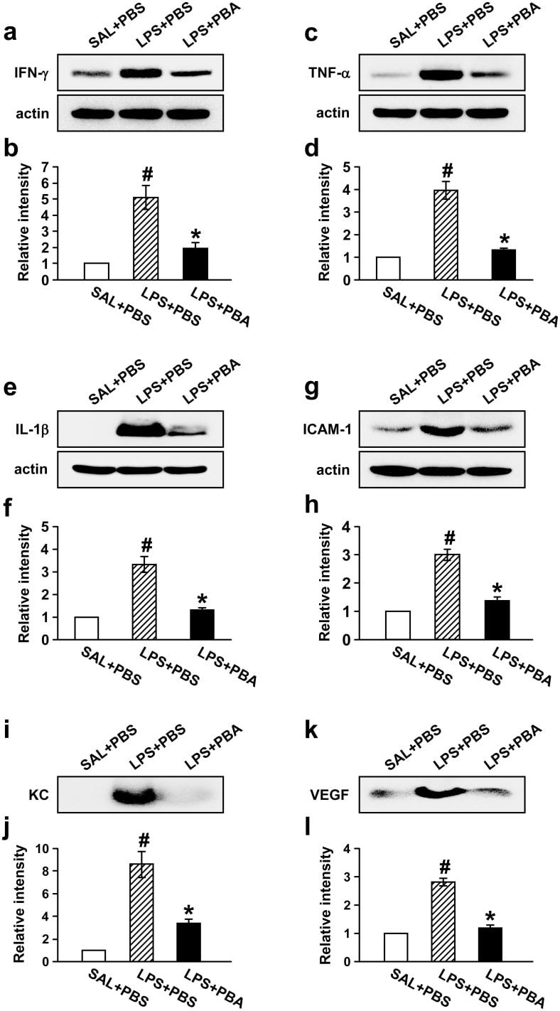 IL-1 beta Antibody