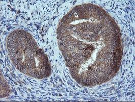 MMACHC Antibody in Immunohistochemistry (Paraffin) (IHC (P))