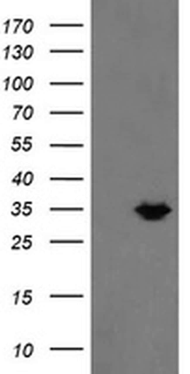 MMACHC Antibody in Western Blot (WB)