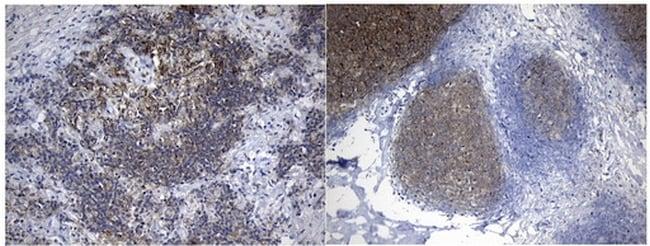 MME Antibody in Immunohistochemistry (Paraffin) (IHC (P))
