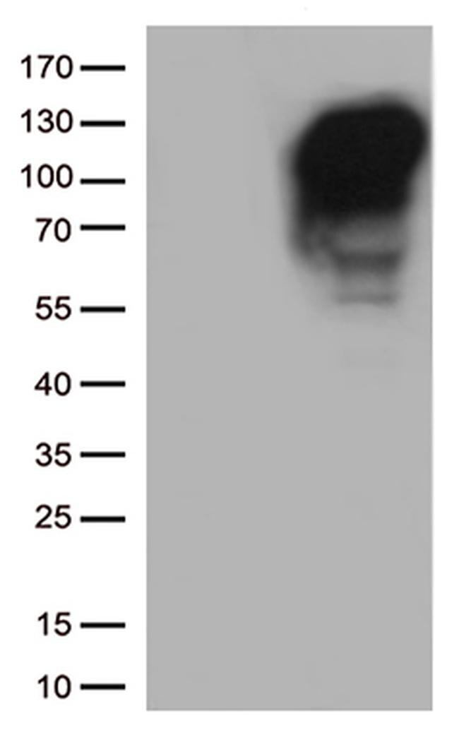 MME Antibody in Western Blot (WB)