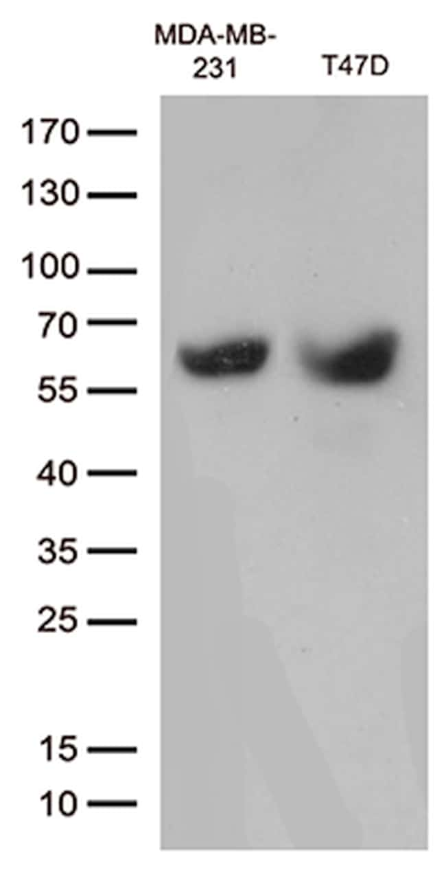 MMP11 Antibody in Western Blot (WB)