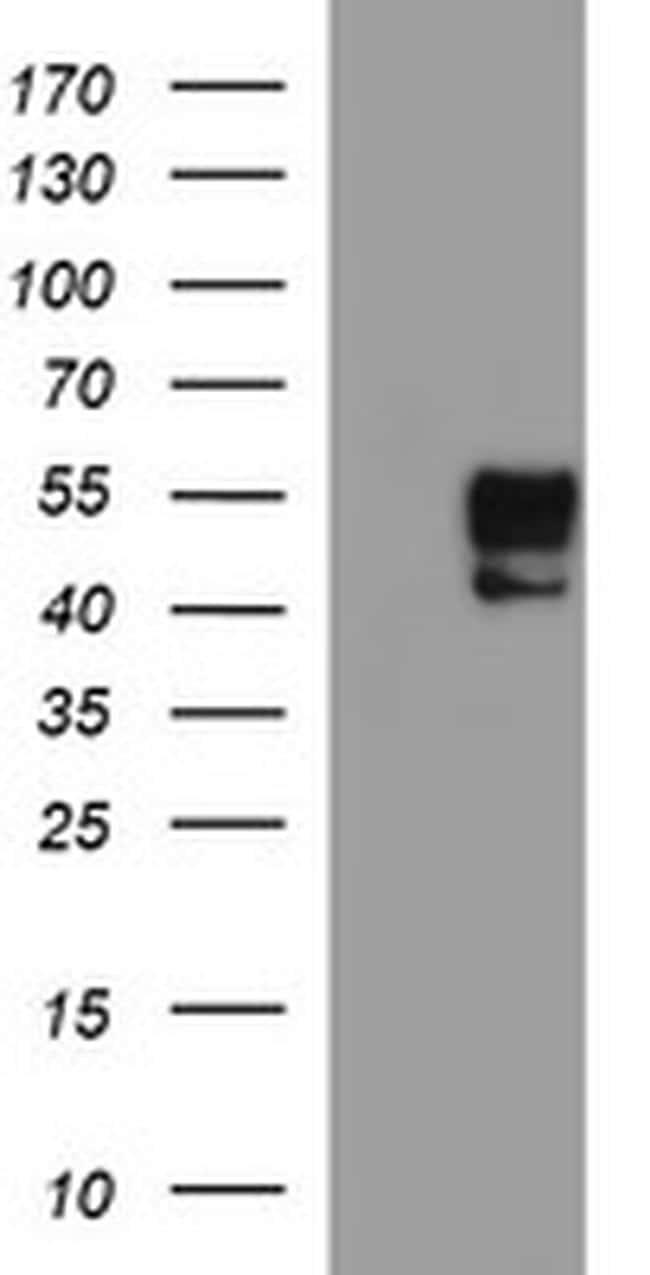 MMP13 Antibody in Western Blot (WB)
