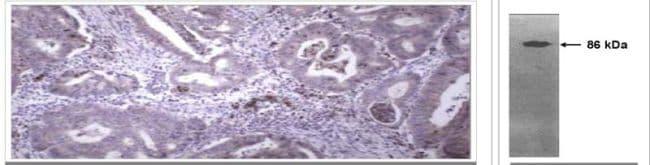 MMP9 Antibody in Immunohistochemistry (IHC)