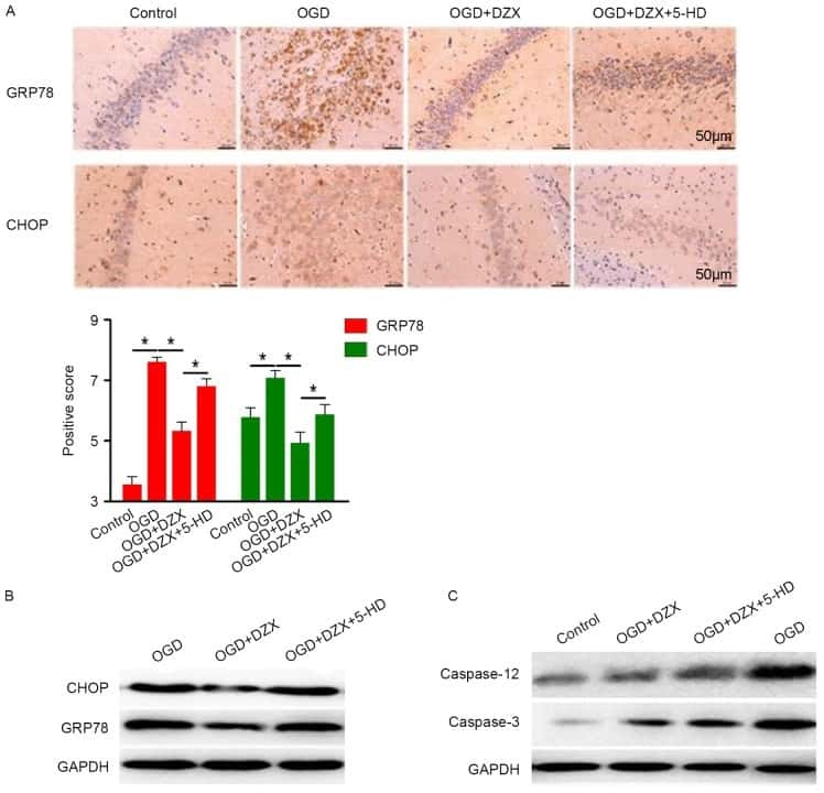 Caspase 3 Antibody