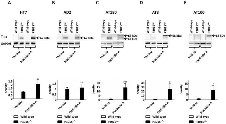 Phospho-Tau (Thr212, Ser214) Antibody