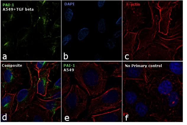 PAI1 Antibody in Immunofluorescence (IF)