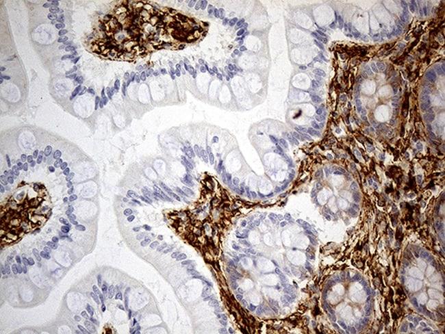 MRC2 Antibody in Immunohistochemistry (Paraffin) (IHC (P))