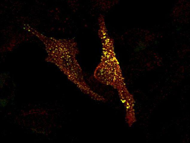 MRCK alpha Antibody in Immunofluorescence (IF)