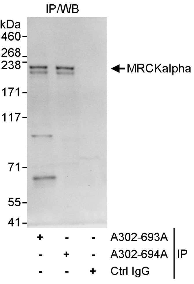 MRCKalpha Antibody in Immunoprecipitation (IP)