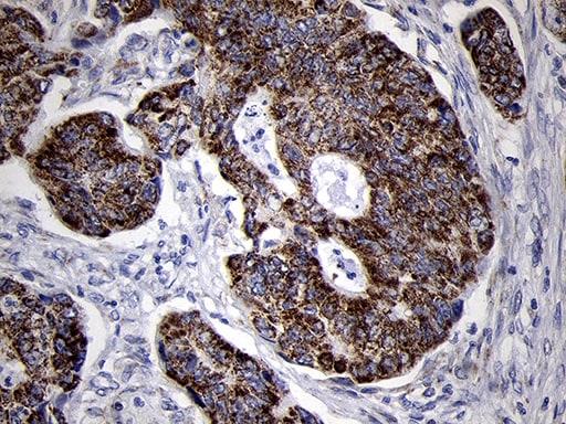 MRPL44 Antibody in Immunohistochemistry (Paraffin) (IHC (P))