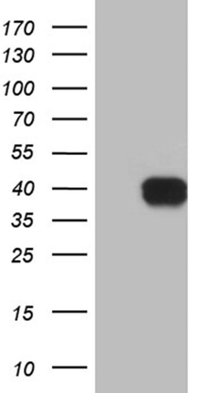 MRPL44 Antibody in Western Blot (WB)