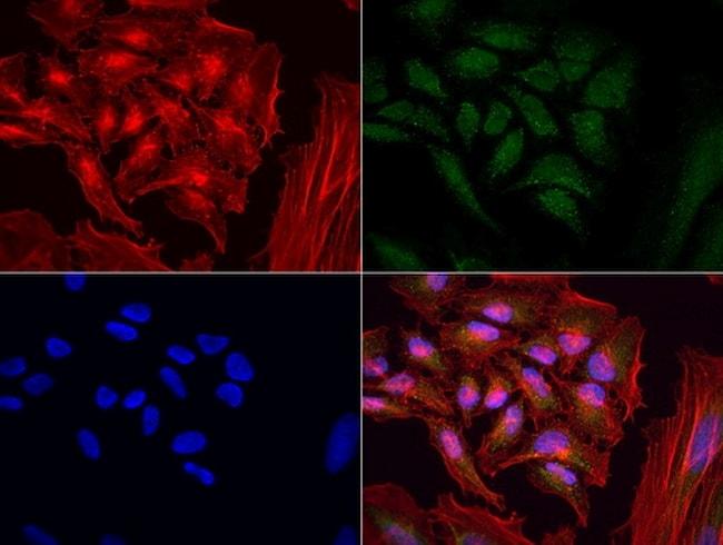 MRPS34 Antibody in Immunocytochemistry (ICC/IF)