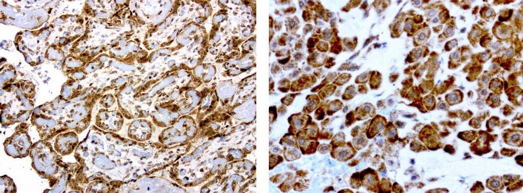 MRPS7 Antibody in Immunohistochemistry (Paraffin) (IHC (P))