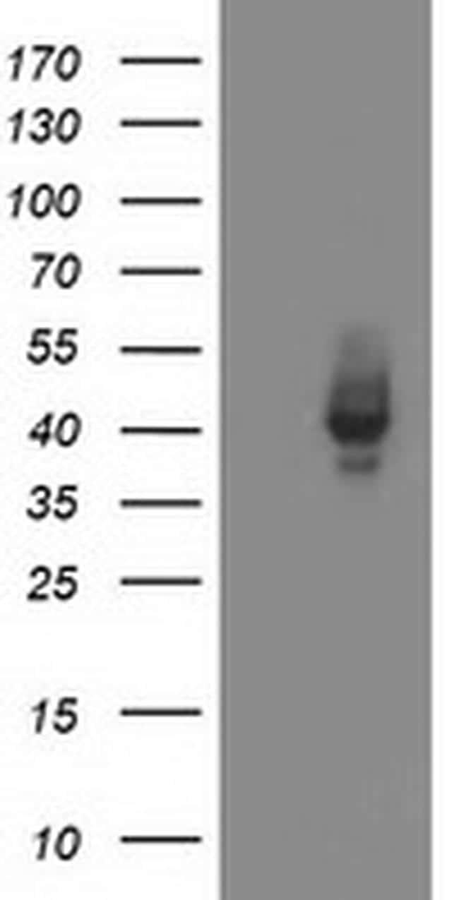 MSI1 Antibody in Western Blot (WB)