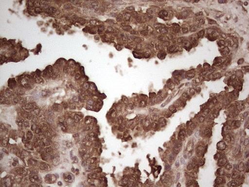 MSLN Antibody in Immunohistochemistry (Paraffin) (IHC (P))