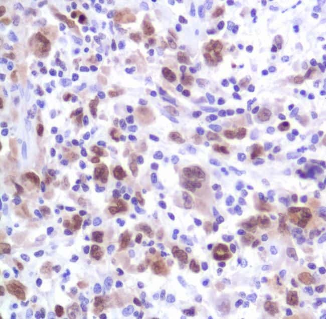 IRF4 Antibody in Immunohistochemistry (IHC)