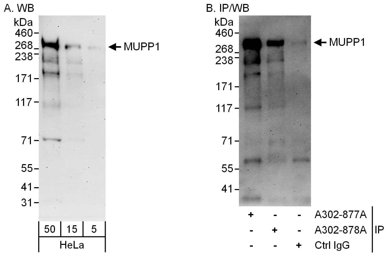 MUPP1 Antibody in Western Blot (WB)