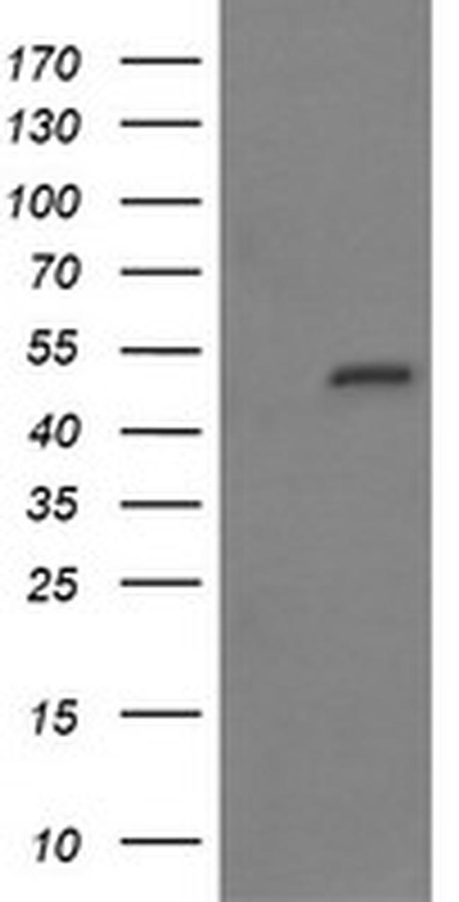 MYBPH Antibody in Western Blot (WB)