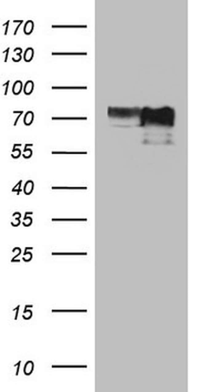MYCN Antibody in Western Blot (WB)