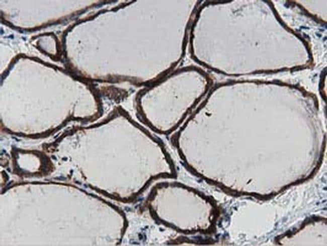 MYD88 Antibody in Immunohistochemistry (Paraffin) (IHC (P))