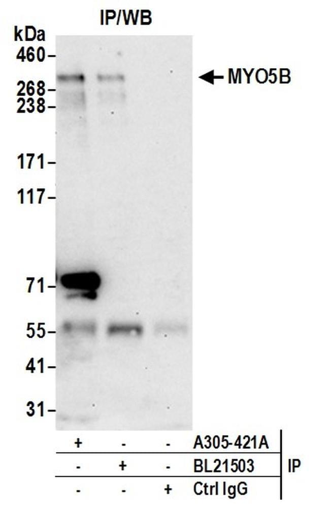MYO5B Antibody in Immunoprecipitation (IP)