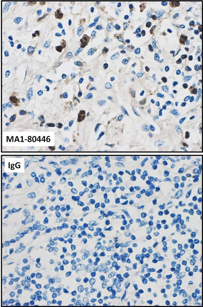 Calprotectin (S100A9) Antibody in Immunohistochemistry (IHC)