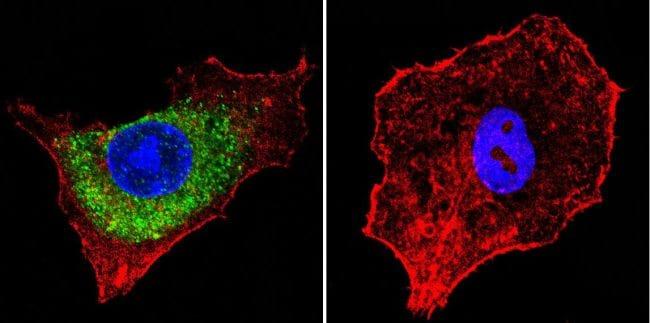 IGF2R Antibody in Immunofluorescence (IF)