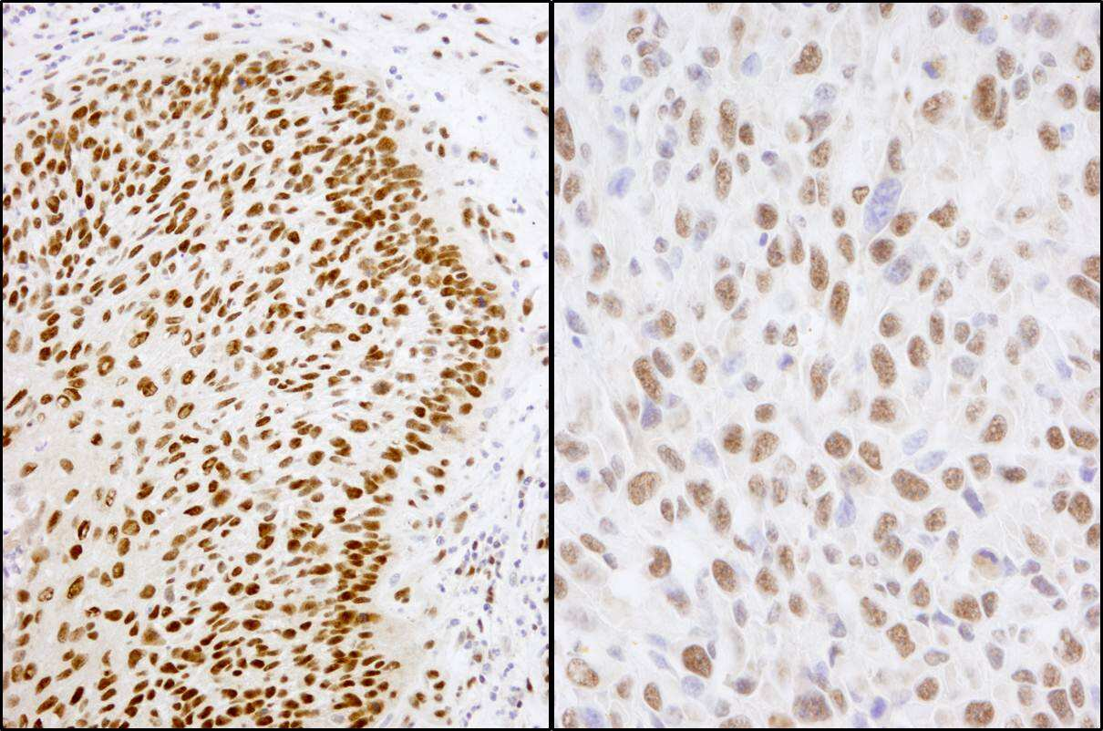 Matrin 3 Antibody in Immunohistochemistry (IHC)