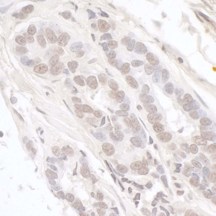 Menin Antibody in Immunohistochemistry (IHC)