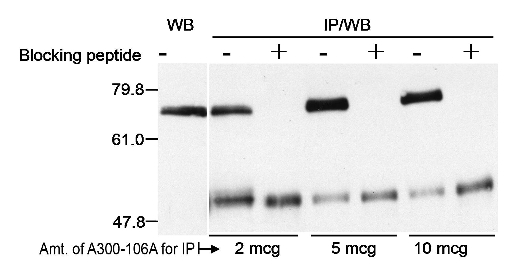 Menin Antibody in Western Blot (WB)